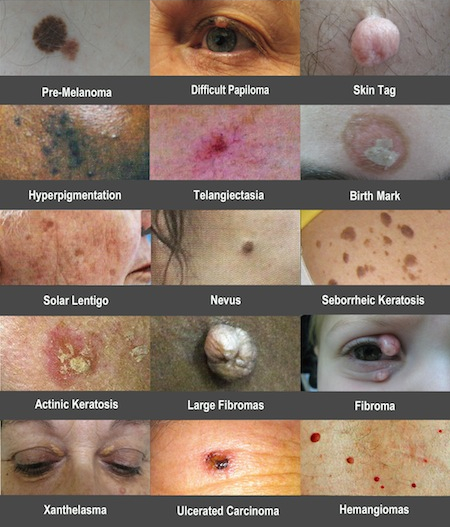 Skin lesions that are easily and non-medically removed without surgery.